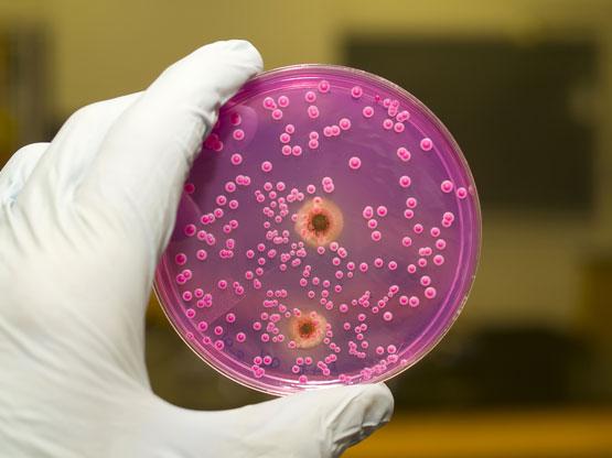 Kandida – kandidijaza (Candida albicans)
